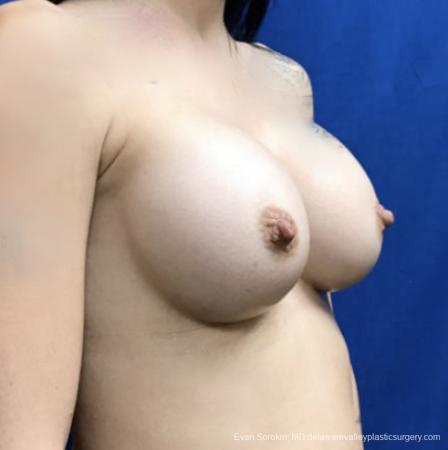 Breast Augmentation: Patient 161 - After Image 2