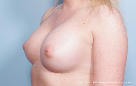 Philadelphia Breast Augmentation 8778 -  After Image 3