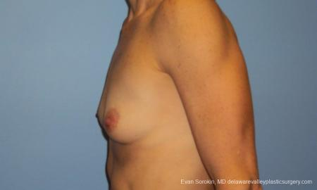 Philadelphia Breast Augmentation 10248 - Before and After Image 5