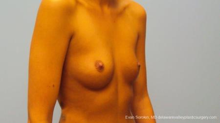 Philadelphia Breast Augmentation 9292 - Before Image 2