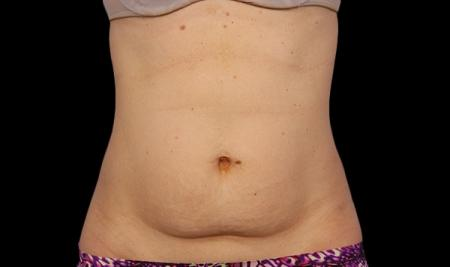 CoolSculpting®: Patient 1 - Before Image