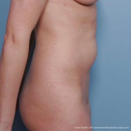 Philadelphia Liposuction 9482 - Before Image 3