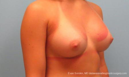 Philadelphia Breast Augmentation 9386 -  After Image 2
