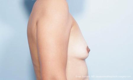 Philadelphia Breast Augmentation 9347 - Before Image 3