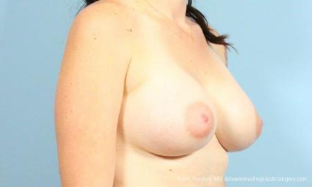Philadelphia Breast Augmentation 9346 -  After Image 2
