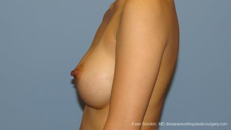Philadelphia Breast Augmentation 9291 -  After Image 5