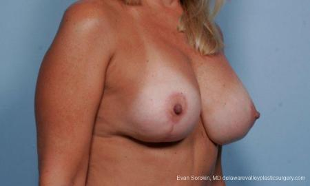 Philadelphia Breast Lift and Augmentation 9375 -  After Image 2