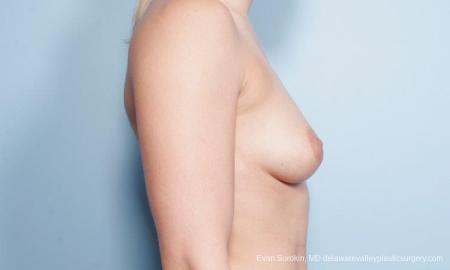 Philadelphia Breast Augmentation 9296 - Before Image 3