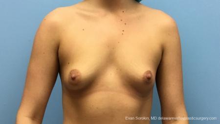 Philadelphia Breast Augmentation 12540 - Before Image 1