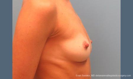 Philadelphia Breast Augmentation 9396 - Before Image 3