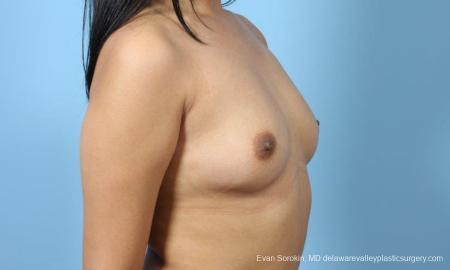 Philadelphia Breast Augmentation 9298 - Before Image 2