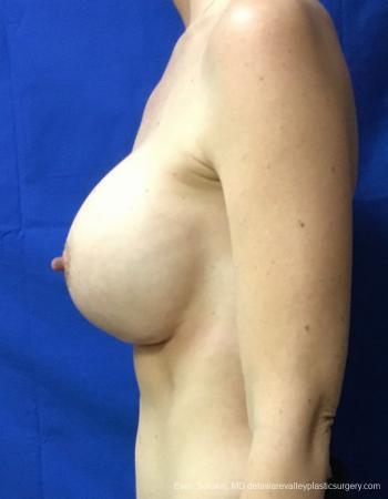 Philadelphia Breast Augmentation 13069 -  After Image 5