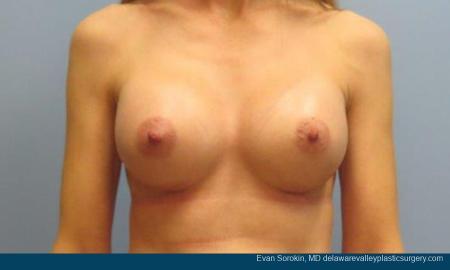 Philadelphia Breast Augmentation 9368 -  After Image 1