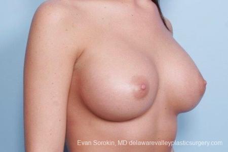 Philadelphia Breast Augmentation 8792 -  After Image 2