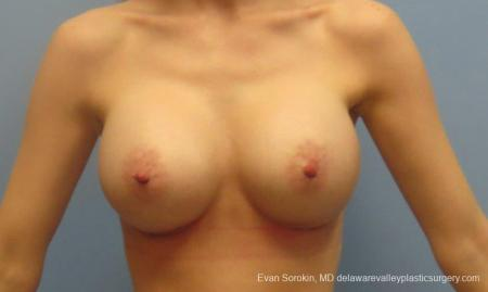 Philadelphia Breast Augmentation 8781 -  After Image 1