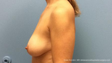 Philadelphia Breast Lift and Augmentation 13179 - Before and After Image 5