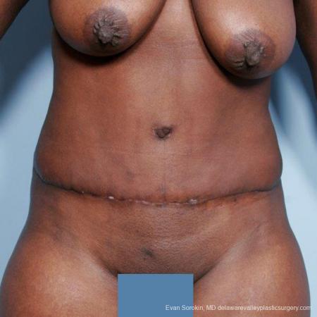 Philadelphia Abdominoplasty 9477 -  After Image 1