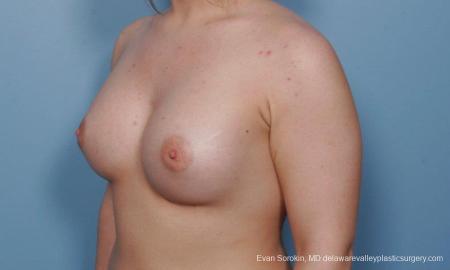 Philadelphia Breast Augmentation 9378 -  After Image 4
