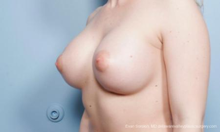 Breast Augmentation: Patient 129 - After Image 4