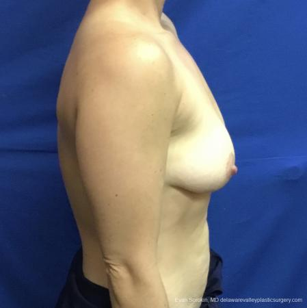 Breast Lift And Augmentation: Patient 3 - Before Image 3