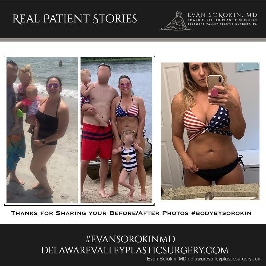 Real Patient Stories: Patient 2 - Before and After Image
