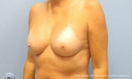 Philadelphia Breast Augmentation 9549 -  After Image 4