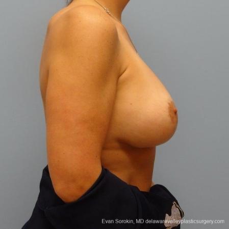 Philadelphia Breast Augmentation 8695 -  After Image 4