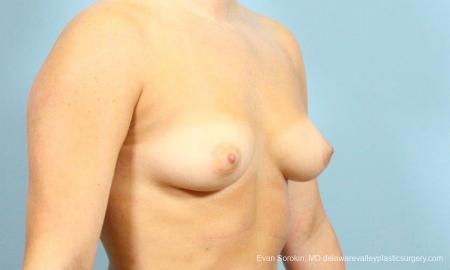 Philadelphia Breast Augmentation 8650 - Before Image 2