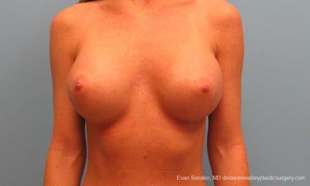 Philadelphia Breast Augmentation 9179 -  After Image 1