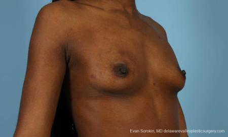 Philadelphia Breast Augmentation 8655 - Before Image 2