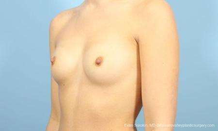 Philadelphia Breast Augmentation 8641 - Before Image 4
