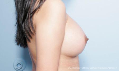 Philadelphia Breast Augmentation 9298 -  After Image 3