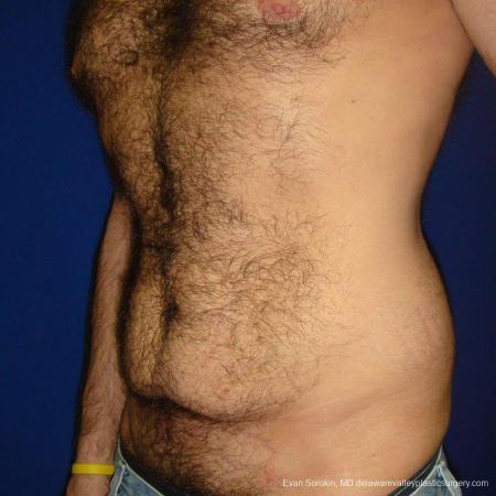 Philadelphia Abdominoplasty 9468 - Before Image 4