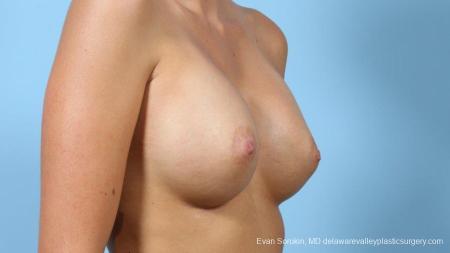 Philadelphia Breast Augmentation 9292 -  After Image 2