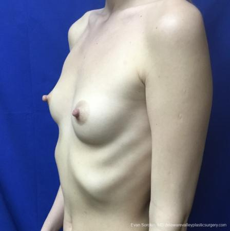 Breast Augmentation: Patient 166 - Before Image 4