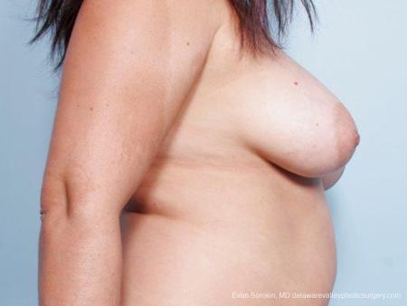 Philadelphia Breast Reduction 9441 - Before Image 3
