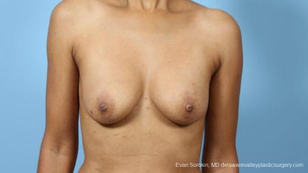 Philadelphia Breast Augmentation 9288 - Before Image 1
