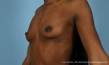 Philadelphia Breast Augmentation 8655 - Before Image 4