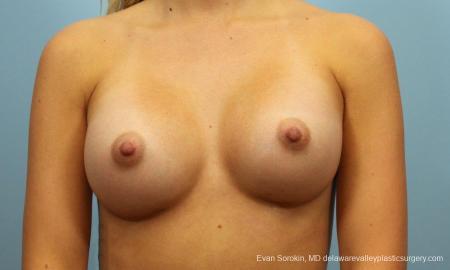 Philadelphia Breast Augmentation 9409 -  After Image 1
