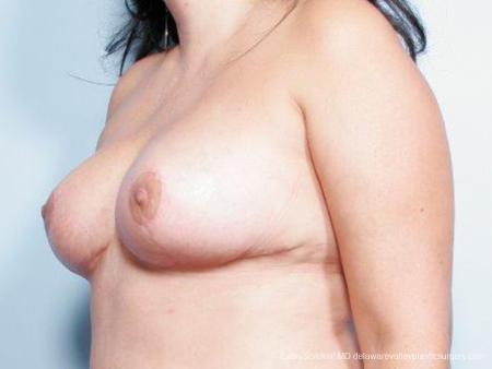Philadelphia Breast Reduction 9441 -  After Image 4