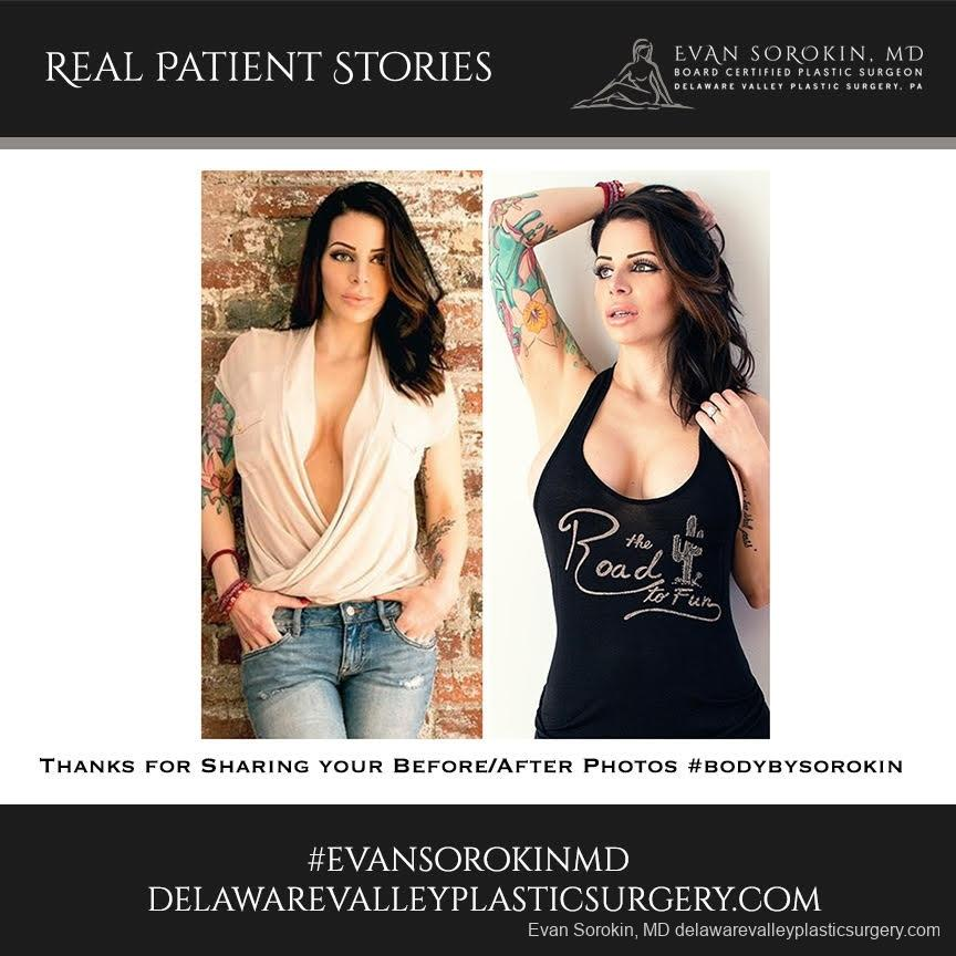 Real Patient Stories: Patient 7 - Before and After Image 1