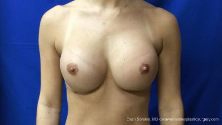 Philadelphia Breast Augmentation 13177 -  After Image 1