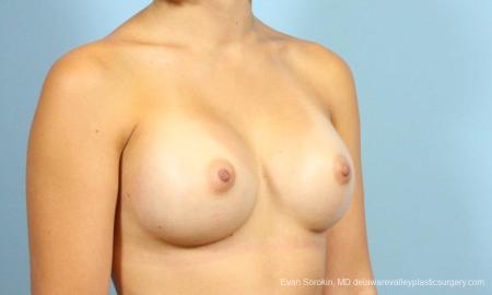 Philadelphia Breast Augmentation 8641 -  After Image 2
