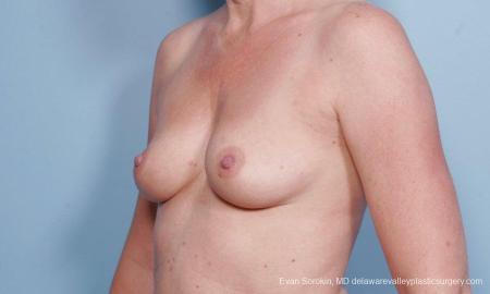 Philadelphia Breast Augmentation 9178 - Before Image 4