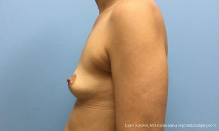 Philadelphia Breast Augmentation 12519 - Before and After Image 5