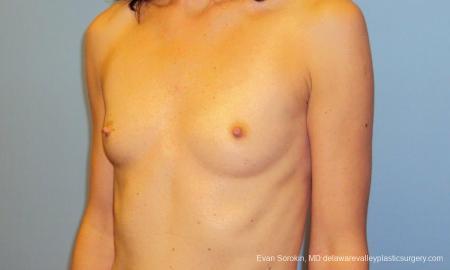 Philadelphia Breast Augmentation 9417 - Before Image 4