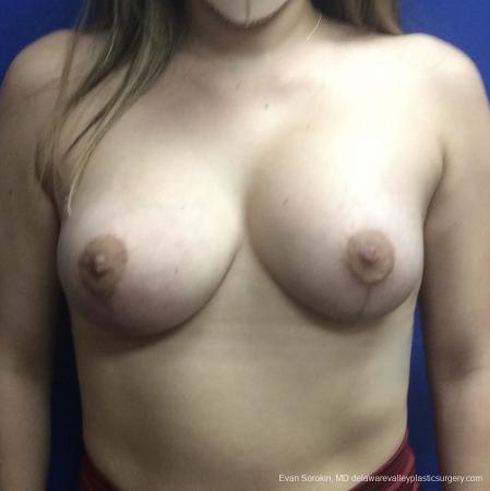 Breast Lift And Augmentation: Patient 40 - After Image 1