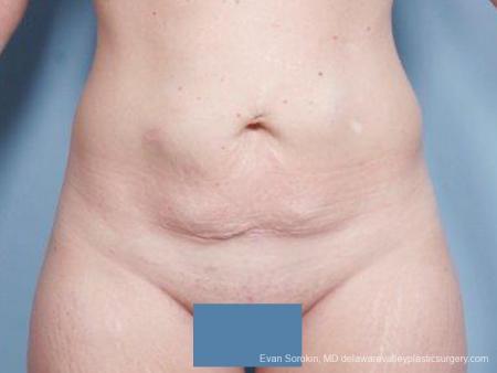 Philadelphia Abdominoplasty 9476 - Before Image 1