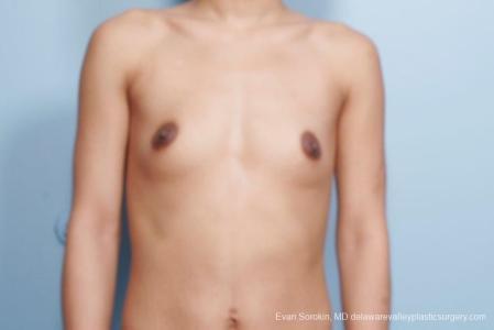 Philadelphia Breast Augmentation 9106 - Before Image 1