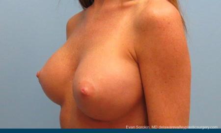 Philadelphia Breast Augmentation 9179 -  After Image 4